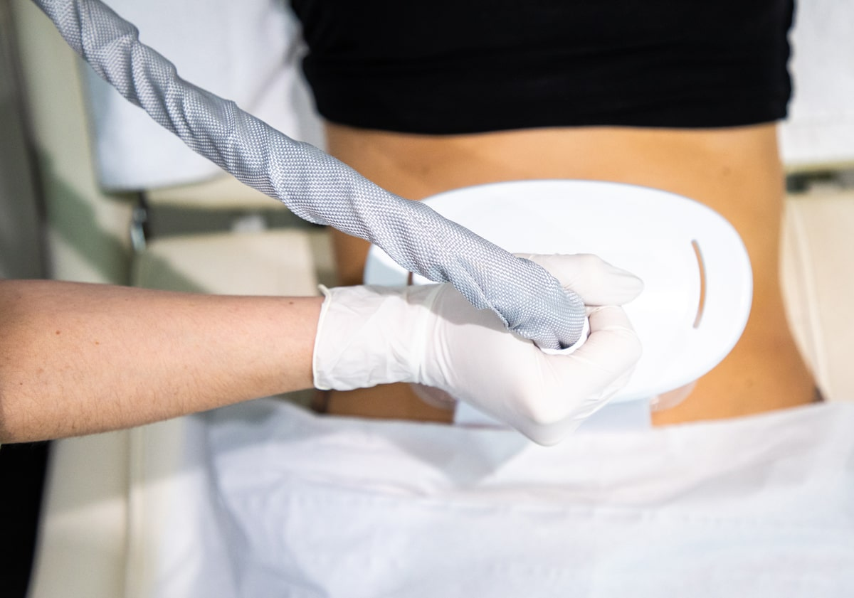Cryolipolysis - Cold Therapy