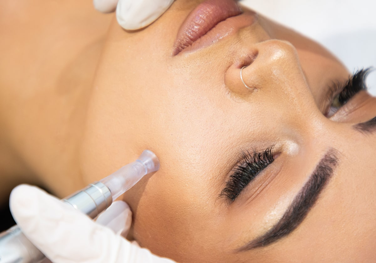 Microneedling Skin Therapy