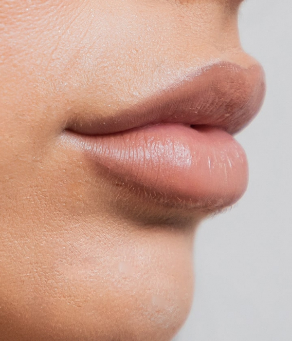 We only use temporary dermal fillers