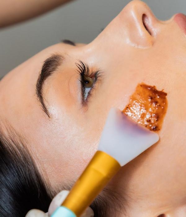 We offer a varied range of chemical skin peels