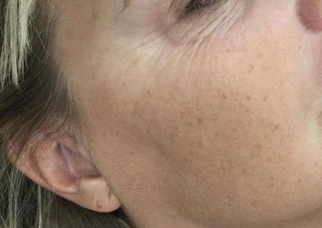 Profhilo Skin Remodelling