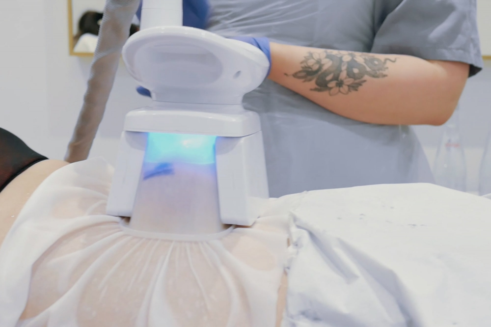 Cryoliposysis - cold therapy treatment