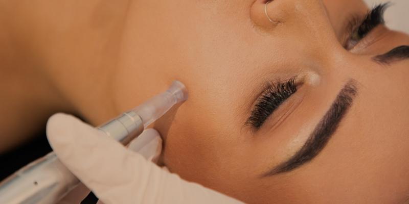 Microneedling Skin Therapy